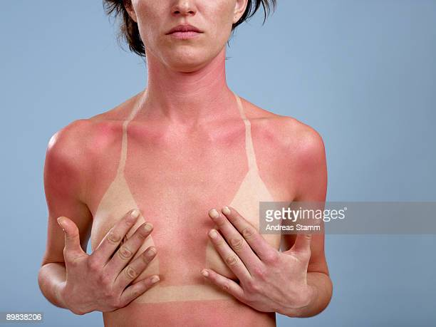 A sunburned woman