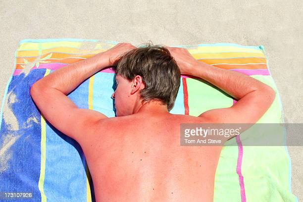 Sunburnt adult male lies face down on beach towel