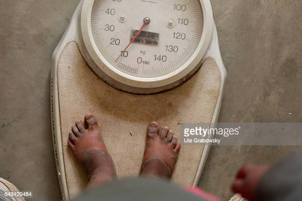 Sunburnt feet of a toddler who is standing on a scale in a small village in the Andes of Bolivia on April 23 2016 in Tawarchapi Bolivia