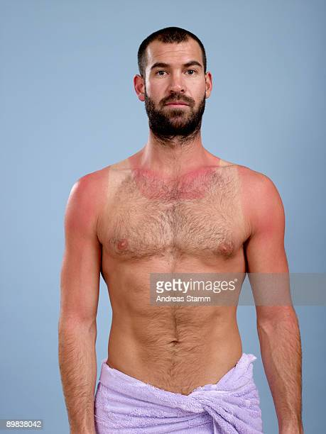 A sunburnt man