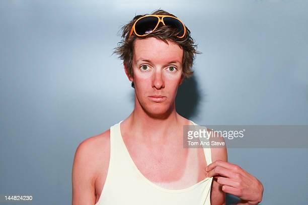 a sunburnt man with tanlines - marque de bronzage photos et images de collection