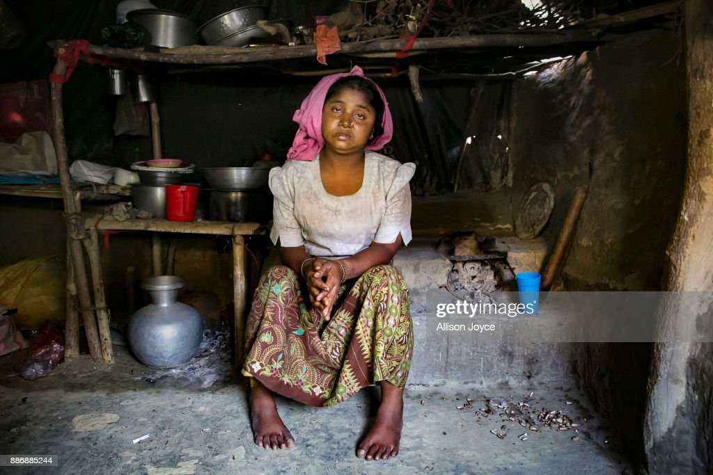 COX'S BAZAR, BANGLADESH - DECEMBER 02: Sunuara, 25, poses for a photo on December 2, 2017 in Cox's Bazar, Bangladesh. She fled to Bangladesh shortly after the August 25th attack from Boulibazar village in Myanmar. She says before the August 25th attack, she had a good life in Myanmar. She was wealthy, she had 42 cows, 2 cars, and rice paddy fields. One day the military attacked her village and soldiers came to her home. Her husband was staying in another village with relatives and her other children were staying with her parents. Only her 16 year old son was home with her, and in front of her eyes the military shot him in the stomach and then cut off his head with a machete. Then they tied her wrists and ankles with rope to her bedposts and 9 men took turns raping her for 6 hours. She was 8 months pregnant at the time, and the military punched and kicked her stomach. She lost consciousness and when she woke up, her husband and brother found her. For 6 days they carried her to the border while she drifted in and out of consciousness. They crossed into Bangladesh where she gave birth at a hospital, but the baby died a day later. Human Rights groups have reported of widespread rape and sexual assault on Rohingya women and girls by Burmese security forces during the violence in Myanmar's Rakhine State. According to reports, more than half of the survivors of sexual assault receiving treatment by humanitarian organizations in refugee camps at the Bangladesh border are below 18 years old. The United Nations human rights chief, Zeid Ra'ad al-Hussein, said on Tuesday that Burmese security forces may be guilty of genocide against the Rohingya Muslim minority during a session in Geneva, adding international pressure on Myanmar to be investigated for crimes against humanity.