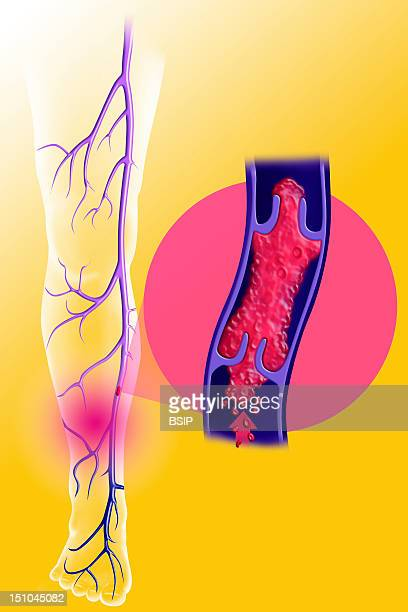 Superficial Venous Thrombosis Of The Lower Limb The Venous Valves Are Folds Of The Veins Walls Force The Blood To Direct Unidirectionally Toward The...