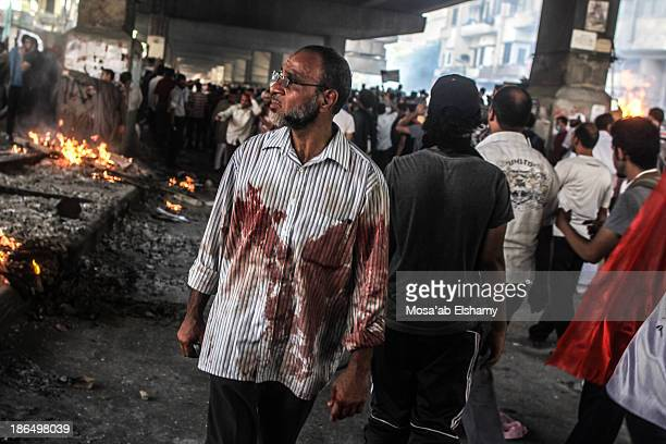 Supporter of ousted president Mohamed Morsi is seen with blood-stained shirt during violent clashes at Ramses square in Cairo.