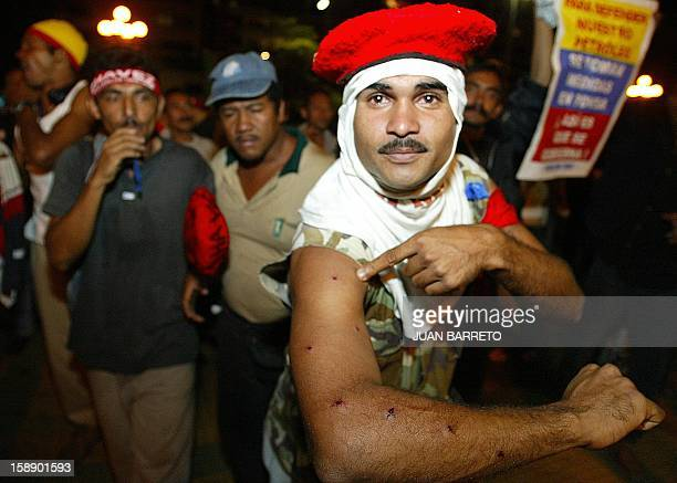 A supporters of embattled Venezuelan President Hugo Chavez demonstrates the injuries he's obtained from police officers 12 December 2002 in Caracas...