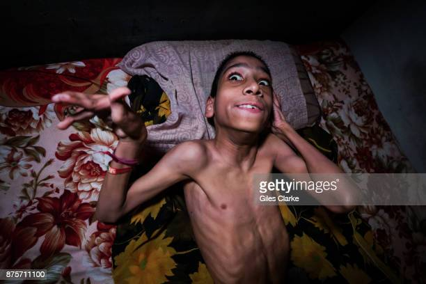Suraj 20 years old at home in the Kainchi Chola neighborhood Suraj was born to parents contaminated by a carcinogenic and mutagenic water supply This...