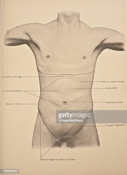 Surface anatomy of the abdomen wall 1903 From 'Surgical Anatomy The Treatise of the Human Anatomy and Its Applications to the Practice of Medicine...