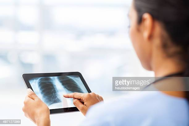 Surgeon Analyzing X-Ray On Digital Tablet In Hospital