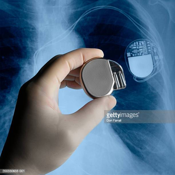 Surgeon holding pacemaker next to x-ray, close-up of hand