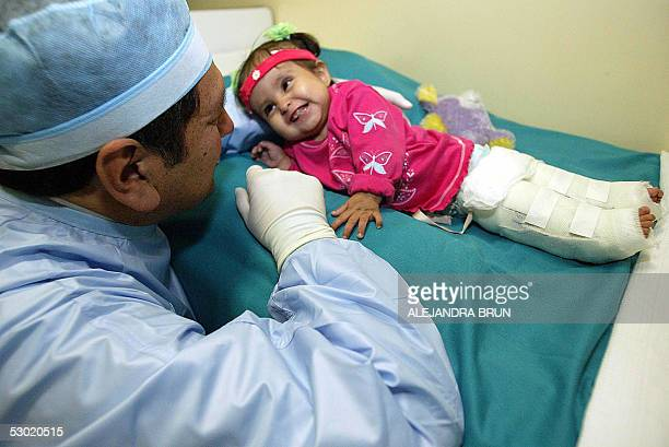 Surgeon Luis Rubio holds 13monthold baby Milagros Cerron affected by the congenital malformation named Sirenomelia with her legs already separated...