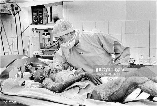 The burns victims in Clamart France in March 1999 March 07 surgeon survey the state of awareness