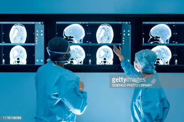 surgeons looking at mri scans during surgery - diagnostic medical tool stock pictures, royalty-free photos & images