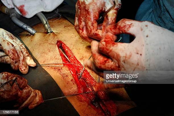 Surgeons stitching surgical wound
