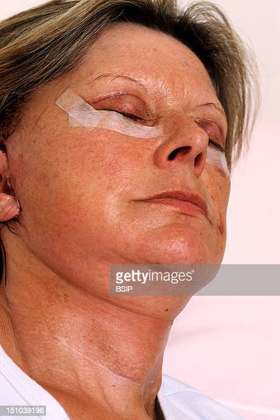Surgery Of The Neck And Lower Eyelids To Remove Bags Under Eyes