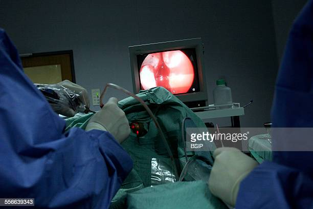 Surgery On The Nose Reportage in Lisbon hospitals operating theatre Portugal Taking a sample of olfactory cells