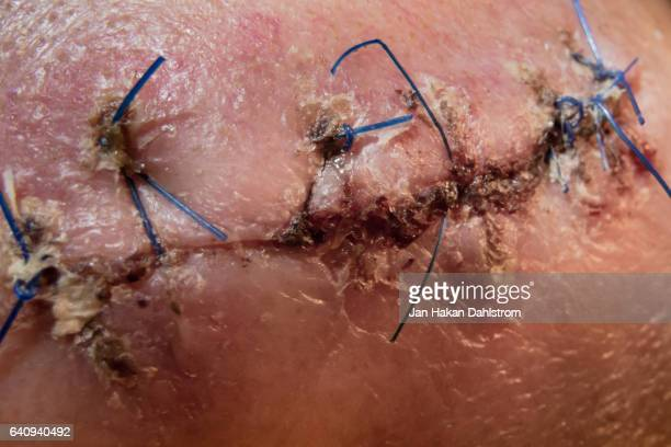 surgery scar with sutures - medical stitches stock photos and pictures
