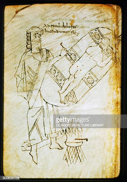 Surgical procedure pen drawing taken from Herbarium by PseudoApuleius based on De Materia Medica by Pedanius Dioscorides manuscript 10th century...
