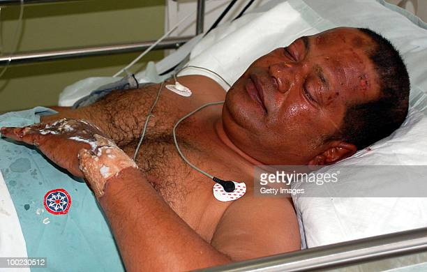 A survivor of the aircrash lays in a bed at a hospital on May 22 2010 in Mangalore An Air India Express Boeing 737800 series aircraft overshot the...