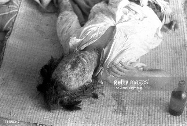 Survivor of the atomic bomb attack on Hiroshima at a Red Cross hospital in the city, Japan, August 1945. The world's first atomic bomb was dropped on...