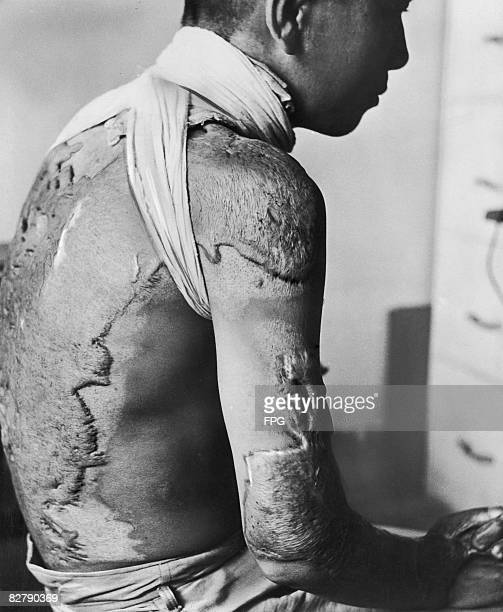 A survivor of the atomic bombings of Japan with extensive keloid scarring to his upper body caused by radiation circa 1946