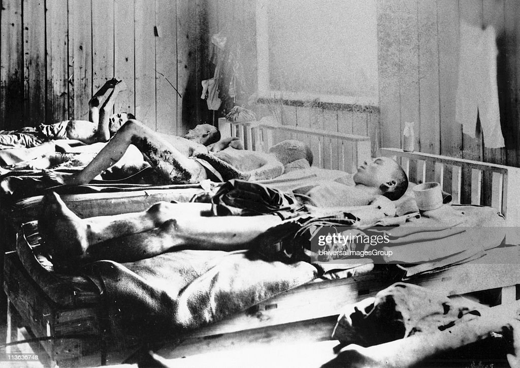 Survivors of the explosion of the Atom bomb at Hiroshima 1945 suffering the effects of radiation. ICRC photograph. : Fotografía de noticias