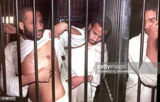 Suspected Islamic militant Mohamed Mawad shows 06 December 1994 bruises he claims come from brutal treatment in jail at the military court in Cairo...