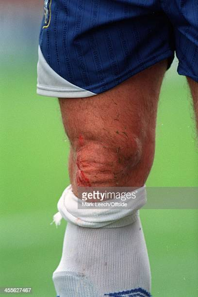 Swindon v Chelsea Preseason Friendly Mark Hughes with a cut knee