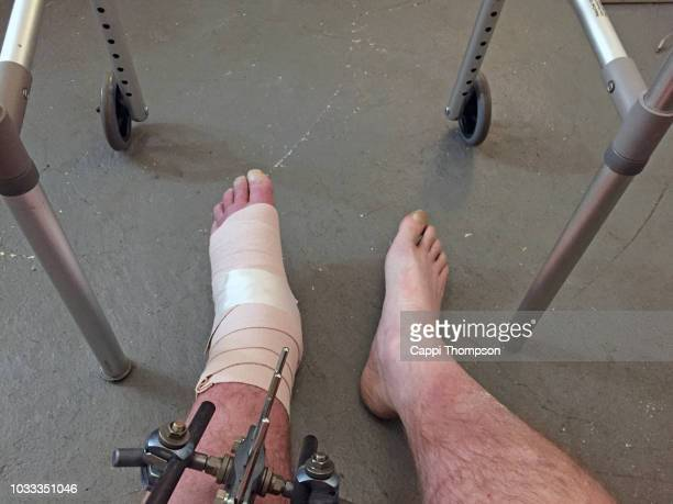 swollen foot with bandage and walker - menschliches körperteil stock-fotos und bilder
