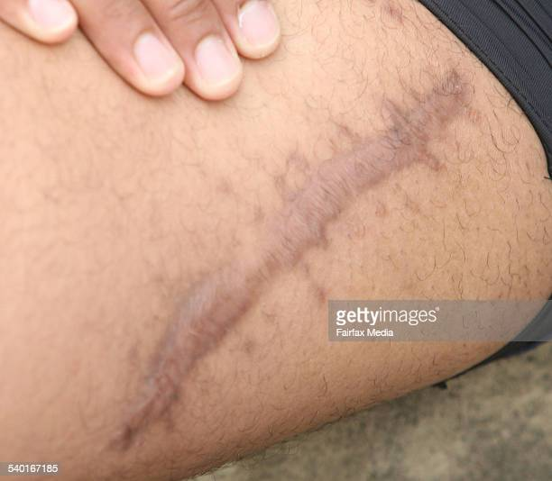 Sydney Roosters' new player Willie Brown at ES Marks Field in Kensington shows a scar from resulting from a bullet wound at a nightclub where he was...