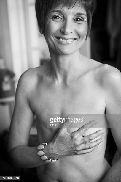 Sylvie had a mastectomy as a result of breast cancer She is a member of the French association The Amazons and says not having breast reconstruction...