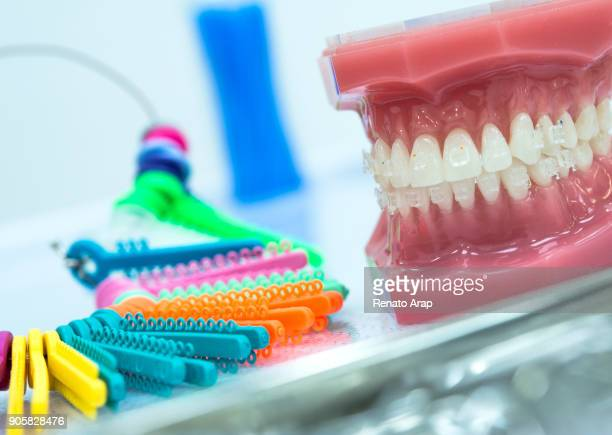 symbol photo of dentures. - molar stock pictures, royalty-free photos & images