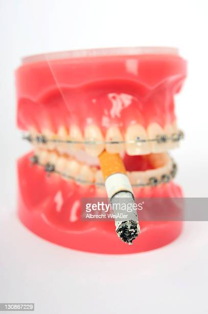 symbolic image for adolescent smokers, dentures with fixed braces and a smoking cigarette - techniker stock pictures, royalty-free photos & images