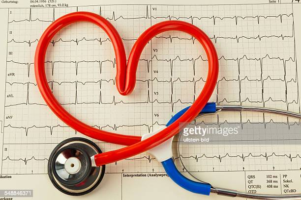 symbolic photo heart attack heart disease heartshaped stethoscope on a med cardiogram