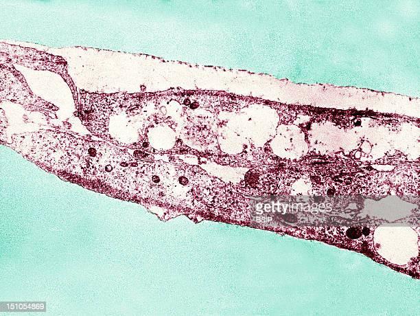 Syphilis Bacterium Treponema Pallidum Subsp Pallidum On Cultures Of Cotton Tail Rabbit Epithelium Cells Sf1Ep Treponema Pallidum Is The Causative...