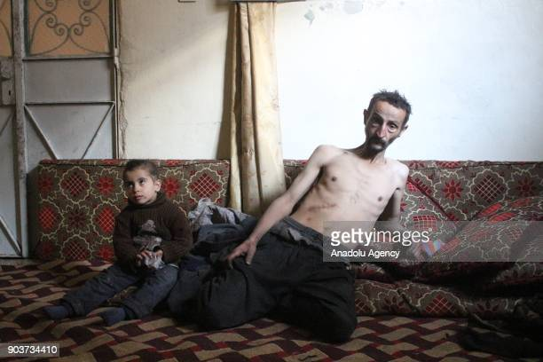Syrian Abu Qasim who lost his job due to health issues after Assad Regime's blockage on Easthern Ghouta sits on the floor in Easthern Ghouta of...