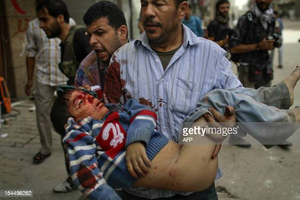 A Syrian boy is rushed to hospital after being wounded in the northern city of Aleppo on October 20 2012 Peace envoy Lakhdar Brahimi pressed in...
