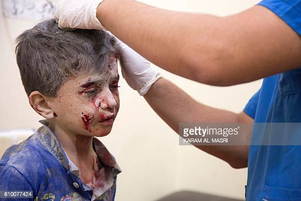 A Syrian boy receives treatment at a makeshift hospital following air strikes on rebelheld eastern areas of Aleppo on September 24 2016 Heavy Syrian...
