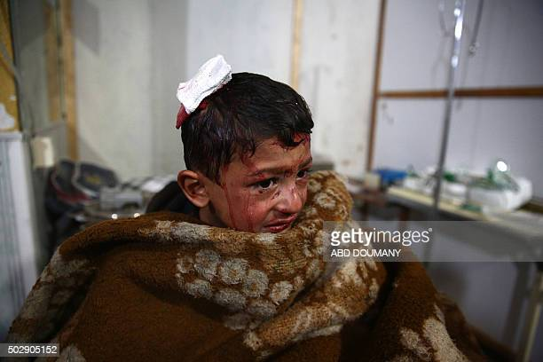 Syrian boy rests after receiving treatment at a makeshift hospital following a reported airstrike by Syrian government forces on the rebelheld town...