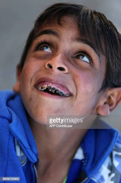A Syrian boy smiles showing decaying cavitated teeth at the Ash'ari camp for the displaced in the rebelheld eastern Ghouta area outside the capital...