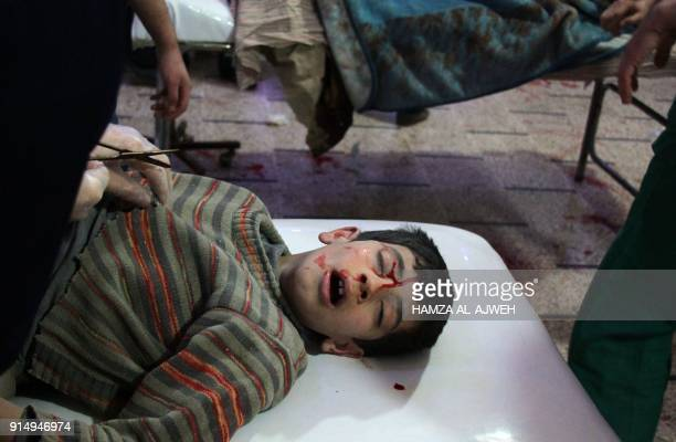 Syrian boy who was injured in reported air strikes on the rebel-held besieged town of Douma in the eastern Ghouta region, on the outskirts of the...
