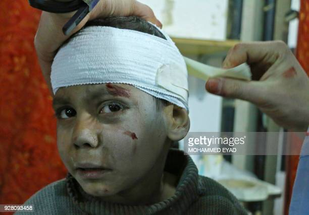 Syrian child Hossam Hawari is treated from a shrapnel wound at a makeshift clinic in Kafr Batna following Syrian government air strikes on rebelheld...