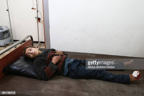 A Syrian child receives treatment at a hospital following a reported air strike in the rebelcontrolled town of Arbin in the eastern Ghouta region on...