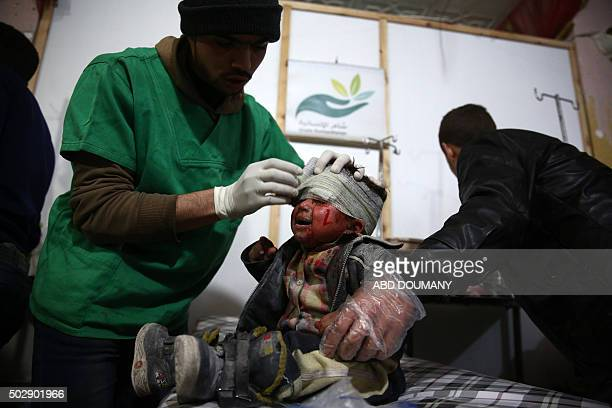 Syrian child receives treatment at a makeshift hospital following a reported airstrike by Syrian government forces on the rebelheld town of Douma on...
