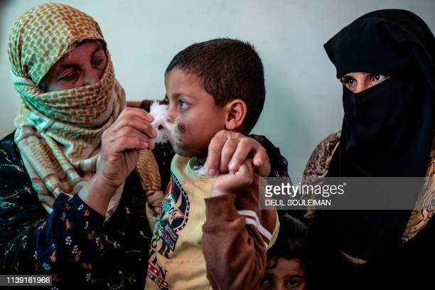 Syrian child receives treatment for leishmaniasis skin disease at a health centre in Karama, in northern Syria, about 26 kilometres east of Raqa, on...