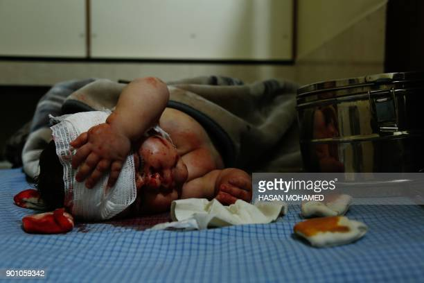 A Syrian child who was injured in bombardment on the town of Misraba receives treatment at a makeshift hospital in the besieged rebelheld town of...