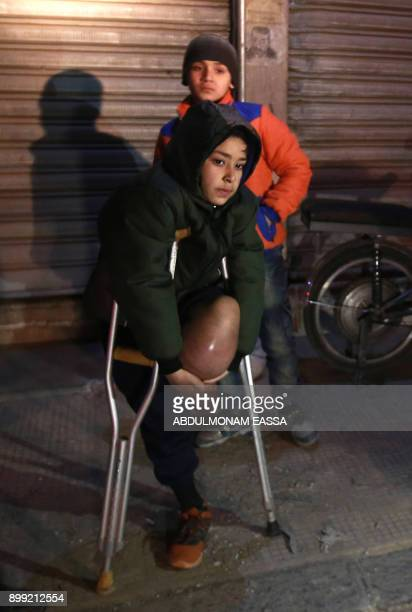 Syrian child with an amputated leg Zuhair alGhazzawi waits on the second night of an evacuation operation led by the Syrian Red Crescent and the...