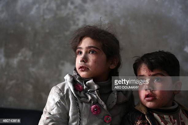Syrian children look on as they wait for treatment at a makeshift clinic in the besieged rebel town of Douma 13 kilometres northeast of Damascus on...