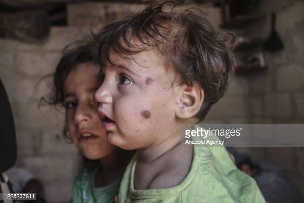 Syrian children suffering from leishmaniasis, a parasitic disease spread by the bite of phlebotomine sandflies, are seen in a refugee camp in Idlib,...
