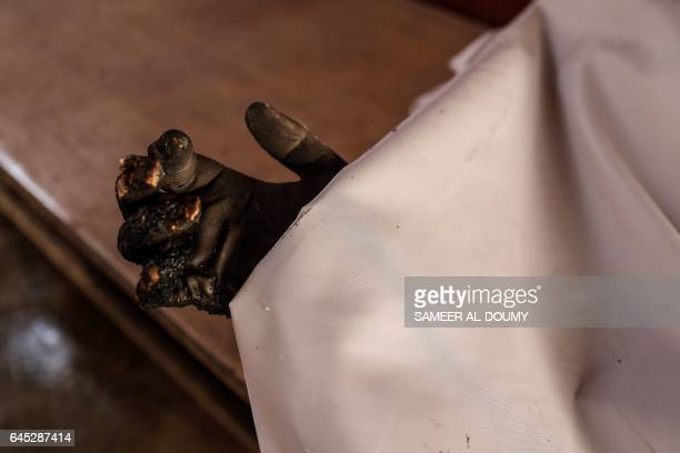 A Syrian child's charred hand is seen from underneath a cloth at a morgue following reported government airstrike on the rebelheld town of Douma on...
