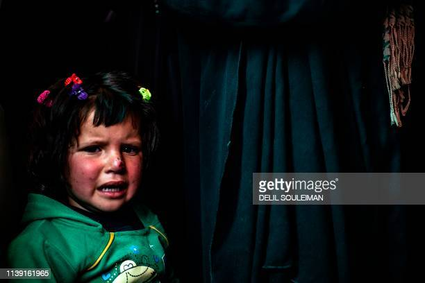 A Syrian girl cries as she waits to receive treatment for leishmaniasis skin disease at a health centre in alKaramah in northern Syria about 26...